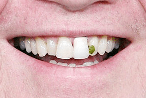 Bad teeth are bad for business  research